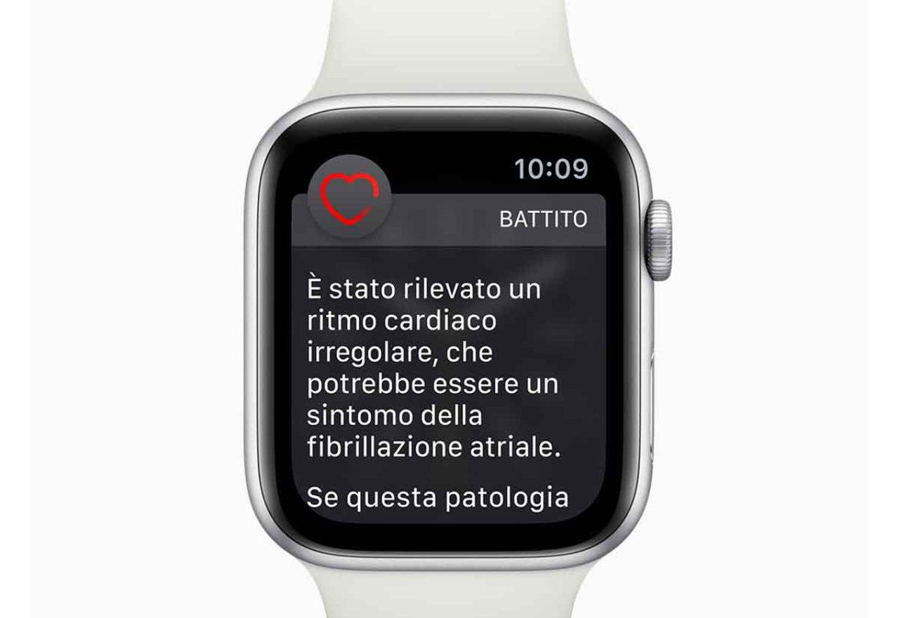 Apple, ECG di Apple Watch copiato? (Foto Wired)