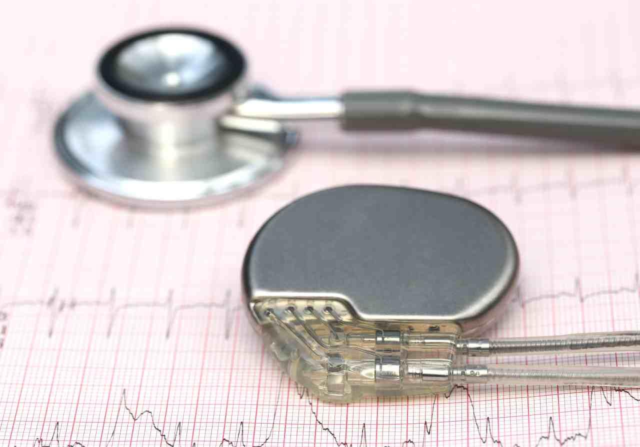 Esami cardiaci e pacemaker (Adobe Stock)